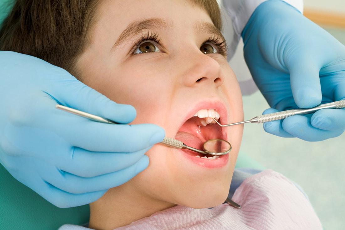 dental sealants Lancaster